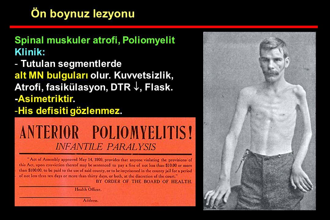 Spinal muskuler atrofi, Poliomyelit Klinik: - Tutulan segmentlerde alt MN bulguları olur. Kuvvetsizlik, Atrofi, fasikülasyon, DTR , Flask. -Asimetrik