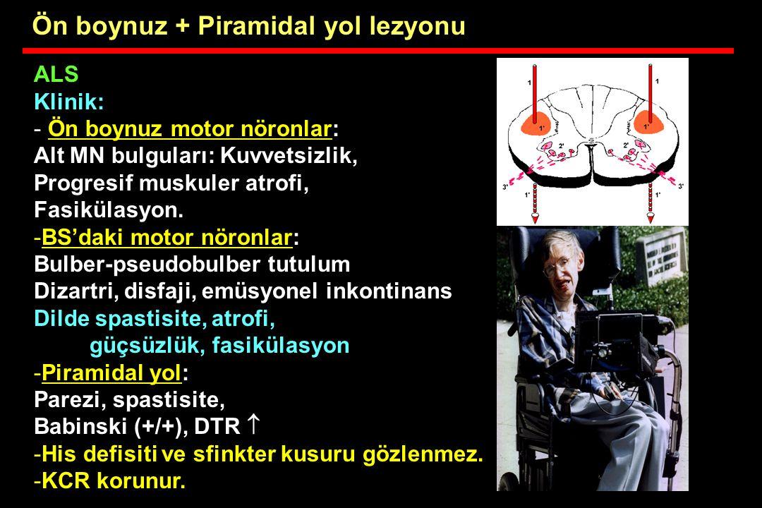 ALS Klinik: - Ön boynuz motor nöronlar: Alt MN bulguları: Kuvvetsizlik, Progresif muskuler atrofi, Fasikülasyon. -BS'daki motor nöronlar: Bulber-pseud