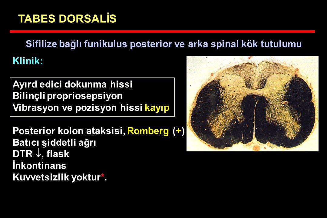 Sifilize bağlı funikulus posterior ve arka spinal kök tutulumu TABES DORSALİS Klinik: Ayırd edici dokunma hissi Bilinçli propriosepsiyon Vibrasyon ve