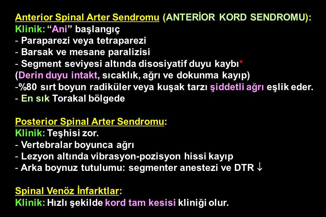 """Anterior Spinal Arter Sendromu (ANTERİOR KORD SENDROMU): Klinik: """"Ani"""" başlangıç - Paraparezi veya tetraparezi - Barsak ve mesane paralizisi - Segment"""