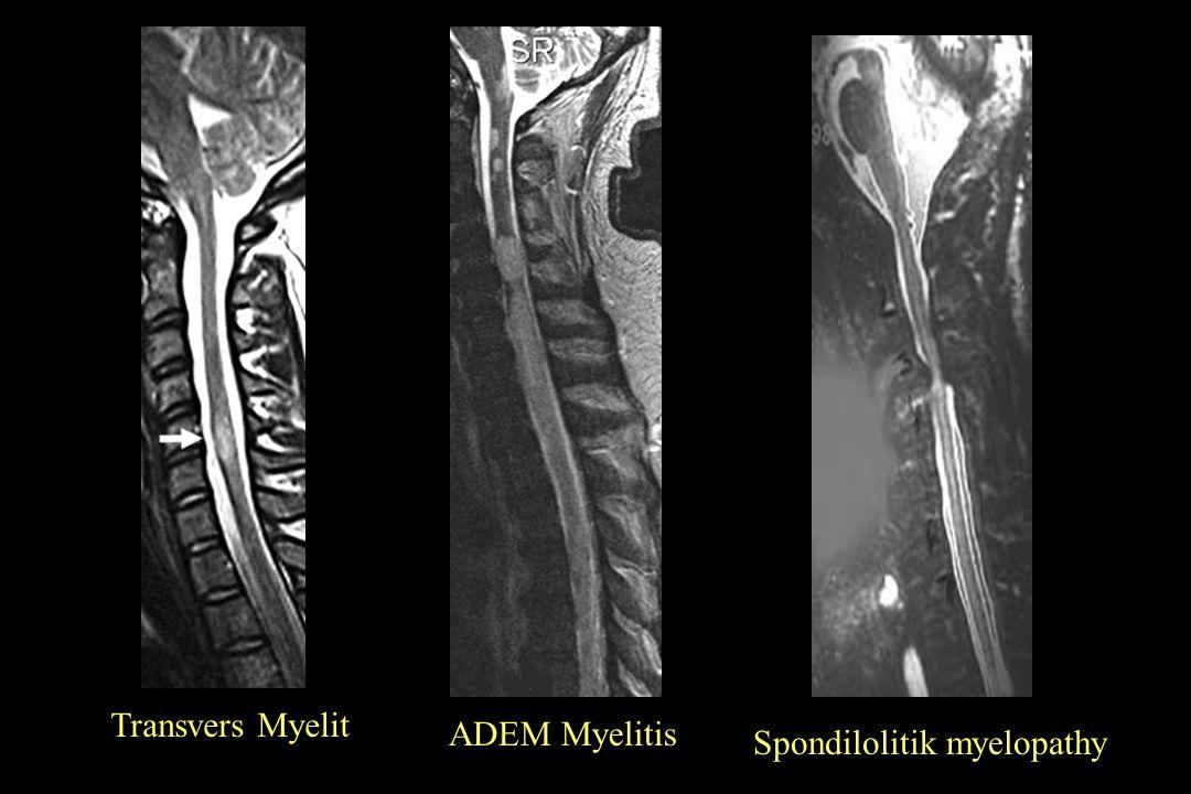 Transvers Myelit ADEM Myelitis Spondilolitik myelopathy