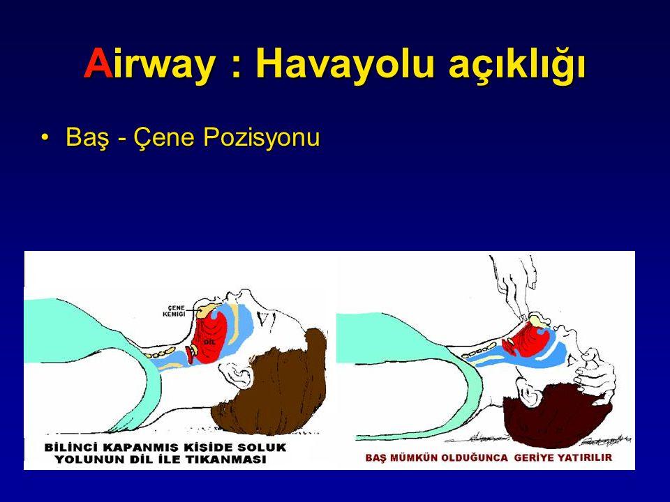 Airway : Havayolu açıklığı Baş - Çene PozisyonuBaş - Çene Pozisyonu