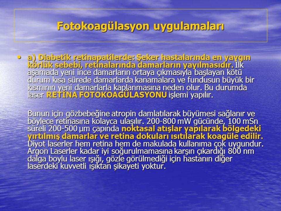Fotokoagülasyon uygulamaları a) Diabetik retinapatilerde: Şeker hastalarında en yaygın körlük sebebi, retinalarında damarların yayılmasıdır.