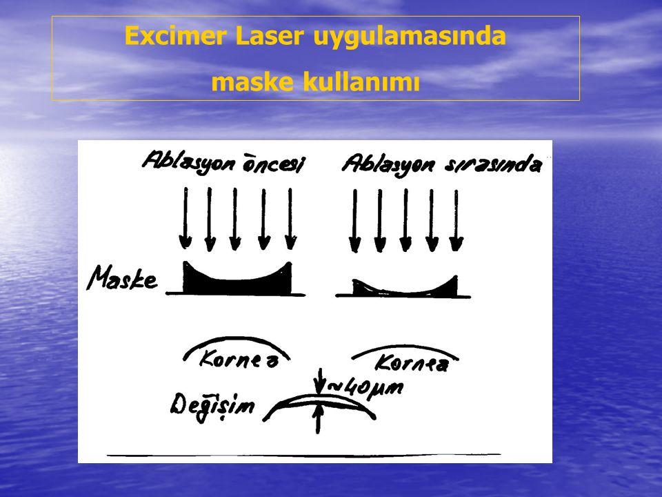 Excimer Laser uygulamasında maske kullanımı