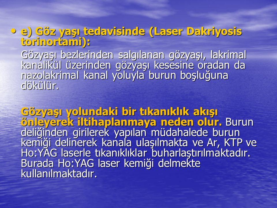 e) Göz yaşı tedavisinde (Laser Dakriyosis torinortami): e) Göz yaşı tedavisinde (Laser Dakriyosis torinortami): Gözyaşı bezlerinden salgılanan gözyaşı, lakrimal kanalikül üzerinden gözyaşı kesesine oradan da nazolakrimal kanal yoluyla burun boşluğuna dökülür.