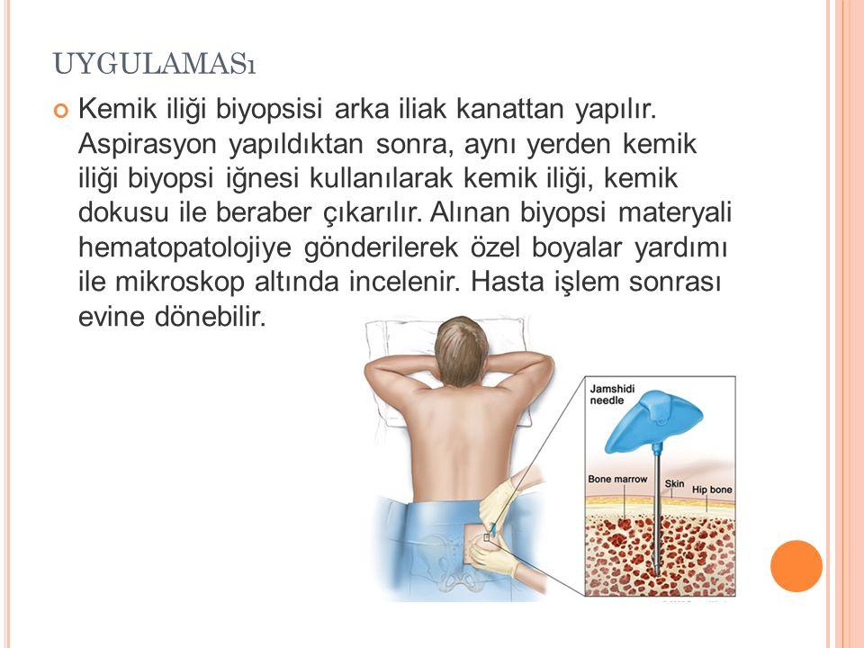 UYGULAMASı Kemik iliği biyopsisi arka iliak kanattan yapılır. Aspirasyon yapıldıktan sonra, aynı yerden kemik iliği biyopsi iğnesi kullanılarak kemik