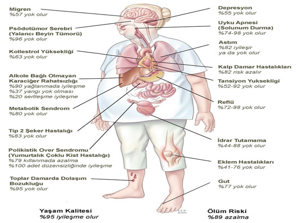 YETİŞKİNLERDE OBEZİTENİN GELİŞİMİNDE BAŞLICA RİSK FAKTÖRLERİ; Fiziksel aktivitede azalma Beslenme alışkanlıkları Yaş Kadın olmak Doğum sayısı Evlilik Sigarayı bırakmak Alkol alımı Ailede obez bireylerin olması Psikolojik nedenler