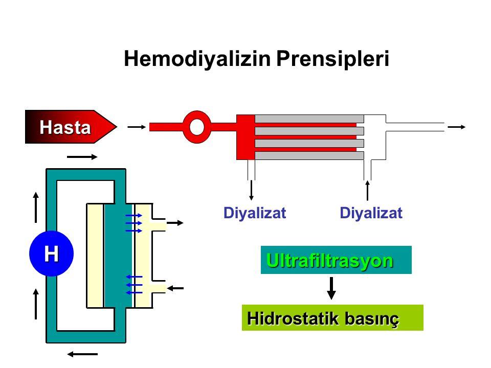 Hemodiyalizin Prensipleri Hasta Diyalizat Ultrafiltrasyon Hidrostatik basınç H