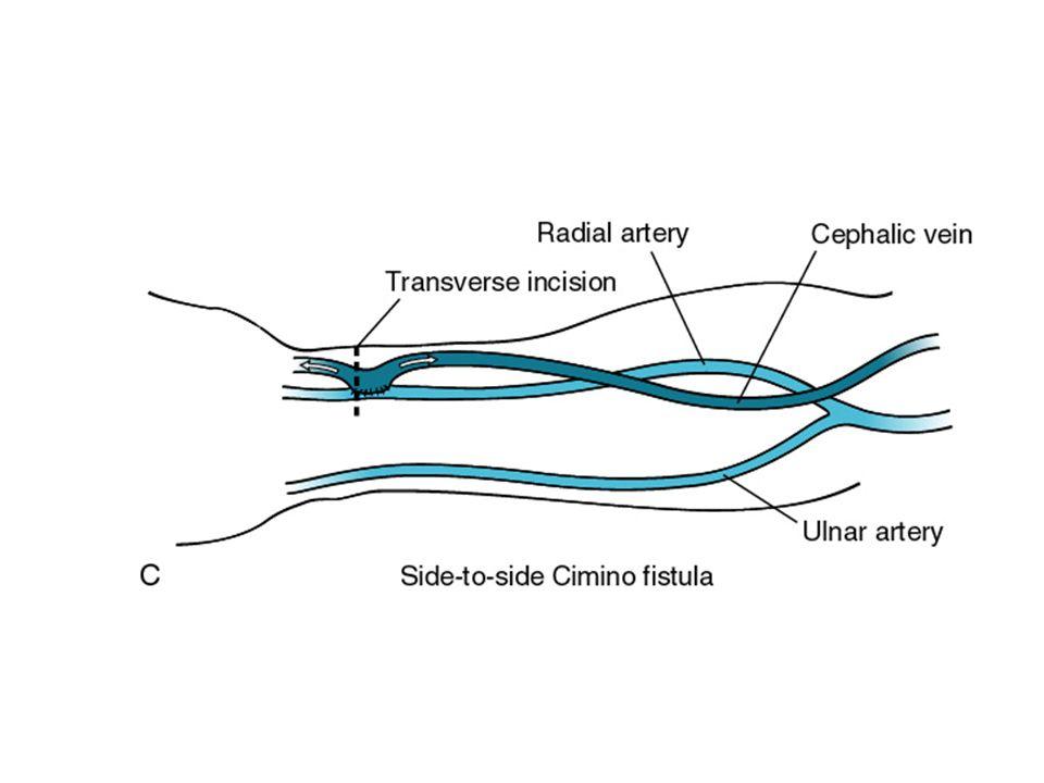 Hemodiyaliz İçin Vasküler Giriş Arter ile ven arasında anastomoz oluşturulması  Arterio-venöz fistül  Arterio-venöz graft KALICI VASKÜLER GİRİŞ Fistül grefte tercih edilmelidir.