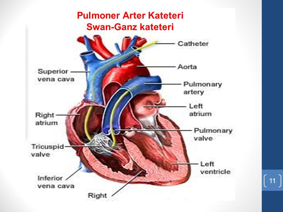 11 Pulmoner Arter Kateteri Swan-Ganz kateteri