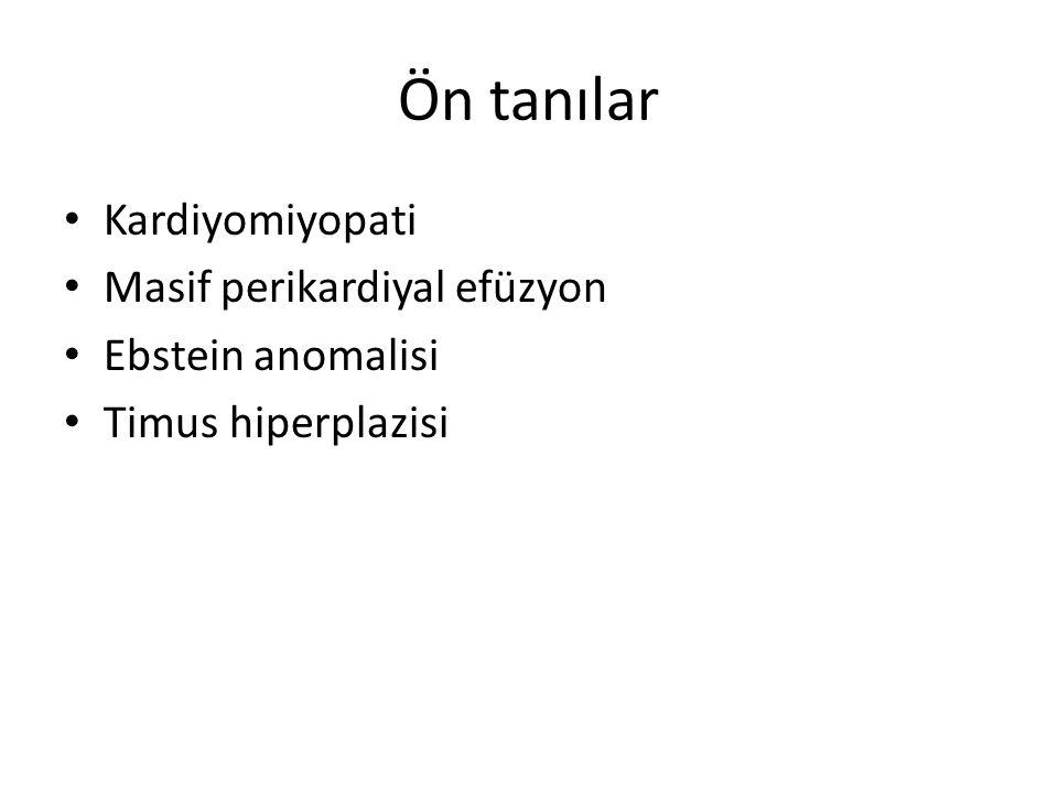 Kardiyomiyopati Masif perikardiyal efüzyon Ebstein anomalisi Timus hiperplazisi