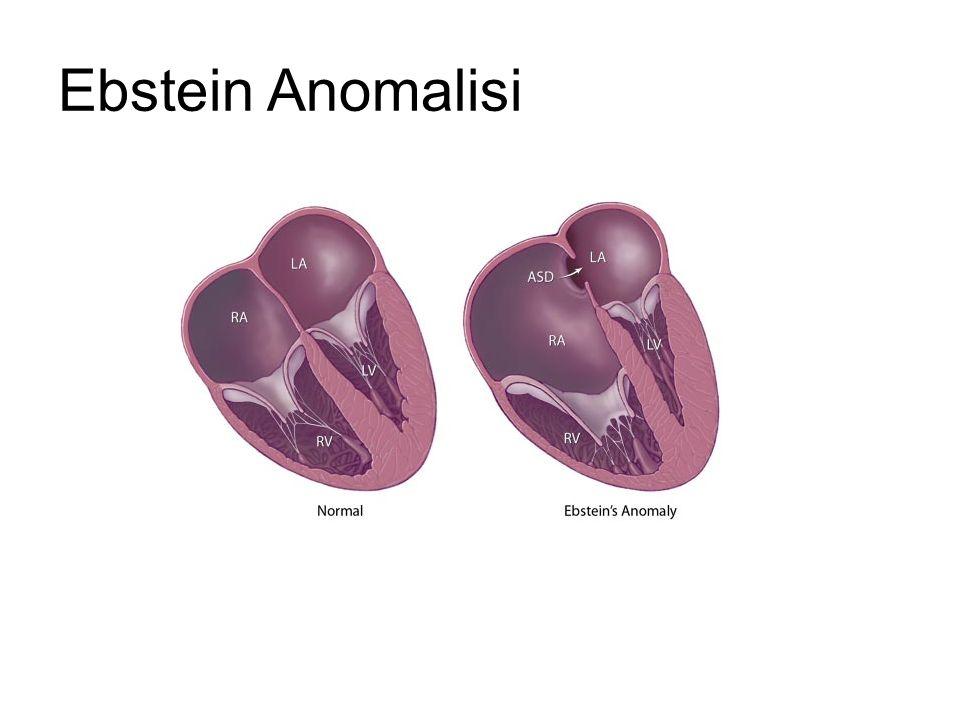 Ebstein Anomalisi