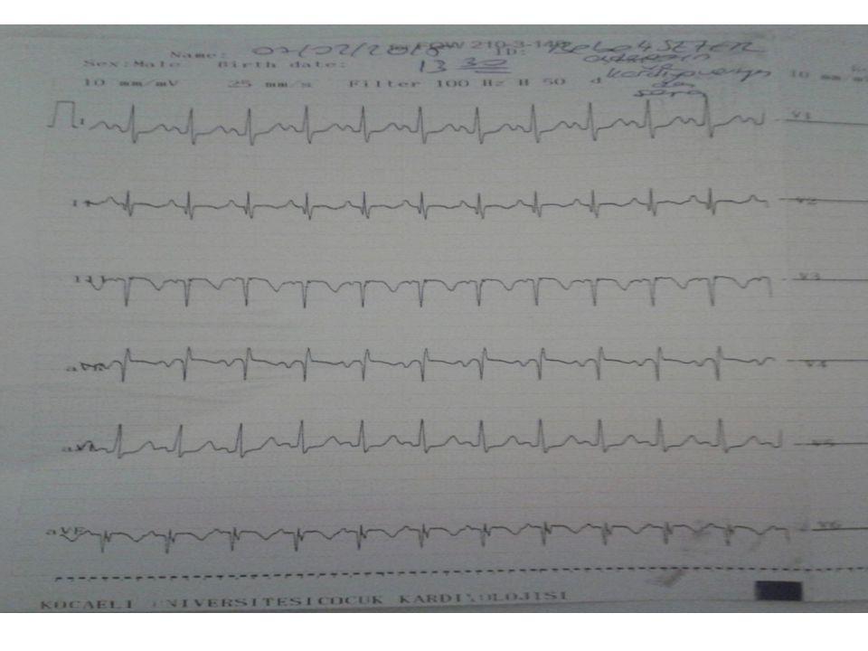 Vaka-1 Klinik İzlem-3 Fonksiyonel pulmoner atrezi nedeniyle pulmoner arter basıncı düşürmek amacıyla PGI2 analoğu (iloprost) başlandı.