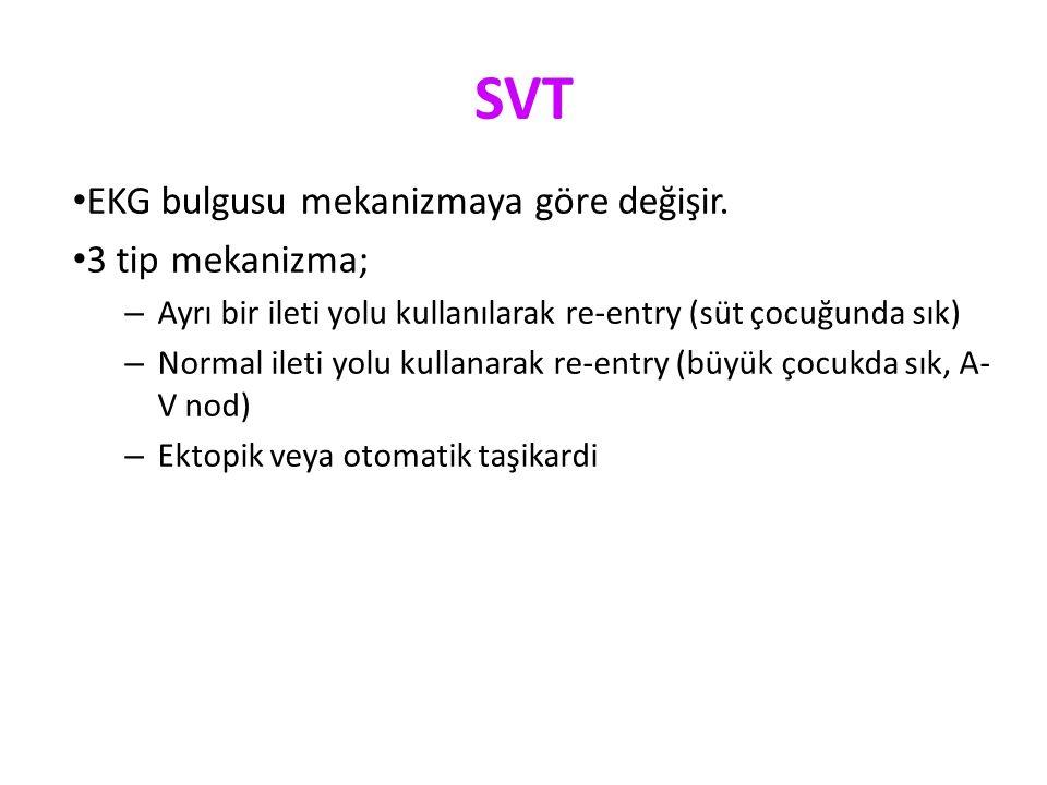 SVT EKG bulgusu mekanizmaya göre değişir.