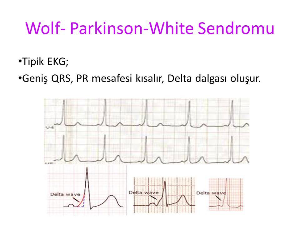 Wolf- Parkinson-White Sendromu Tipik EKG; Geniş QRS, PR mesafesi kısalır, Delta dalgası oluşur.