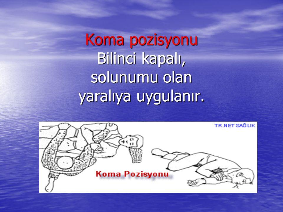 Koma pozisyonu Bilinci kapalı, solunumu olan yaralıya uygulanır.
