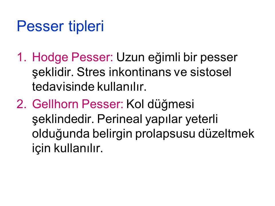 Pesser tipleri 1.Hodge Pesser: Uzun eğimli bir pesser şeklidir. Stres inkontinans ve sistosel tedavisinde kullanılır. 2.Gellhorn Pesser: Kol düğmesi ş