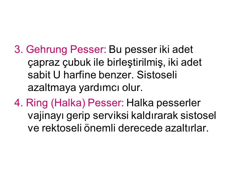 3. Gehrung Pesser: Bu pesser iki adet çapraz çubuk ile birleştirilmiş, iki adet sabit U harfine benzer. Sistoseli azaltmaya yardımcı olur. 4. Ring (Ha