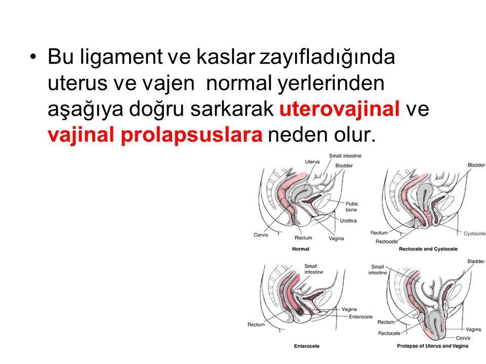 Bu ligament ve kaslar zayıfladığında uterus ve vajen normal yerlerinden aşağıya doğru sarkarak uterovajinal ve vajinal prolapsuslara neden olur.