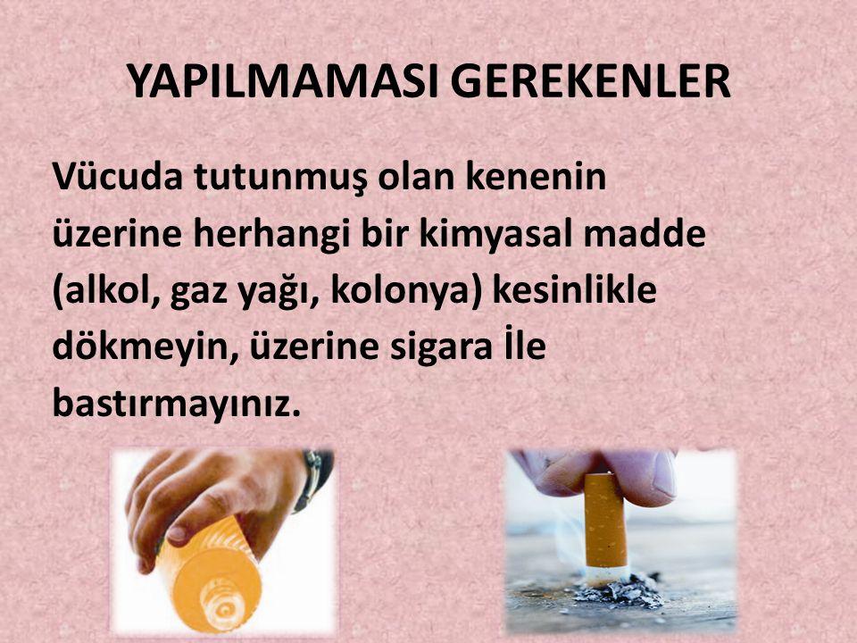 YAPILMAMASI GEREKENLER Vücuda tutunmuş olan kenenin üzerine herhangi bir kimyasal madde (alkol, gaz yağı, kolonya) kesinlikle dökmeyin, üzerine sigara İle bastırmayınız.