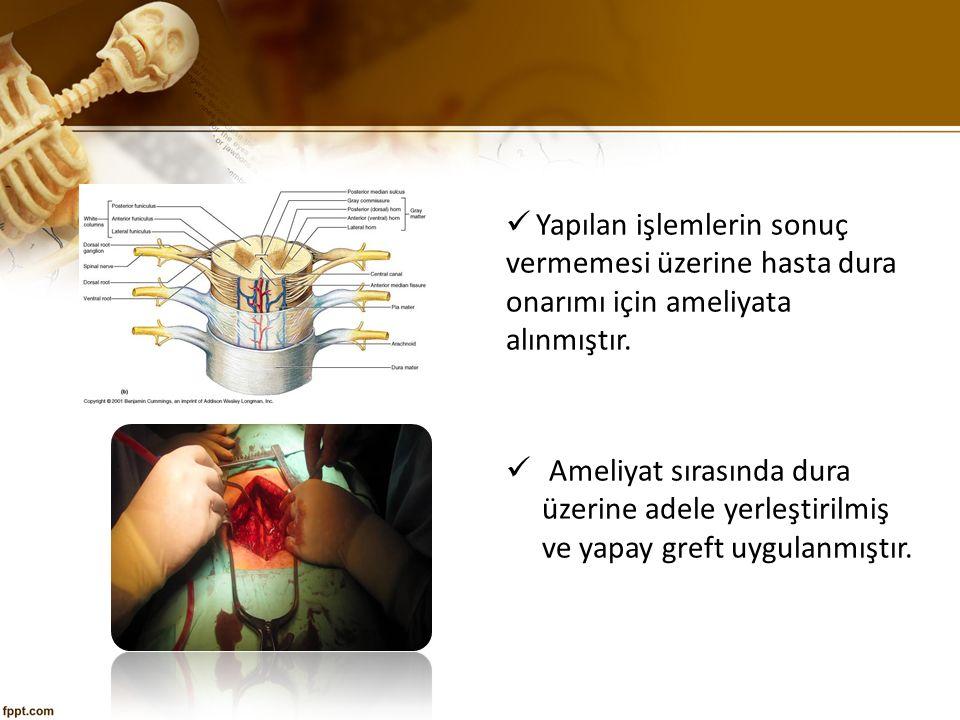 Yapılan işlemlerin sonuç vermemesi üzerine hasta dura onarımı için ameliyata alınmıştır.