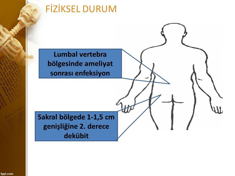 Spinal Stenoz Tedavisi Lomber fleksiyon egzersizleri ile spinal kanalın çapını kısmen genişletme Antiromatizmal ilaçlar,analjezikler,streoid uygulama Kilo verilmesi İstirahat Fizik tedavi Epidural steroid uygulamaları Cerrahi : Spinal stenoz hastaların çoğunda cerrahi dışı tedaviler sonuç vermez.
