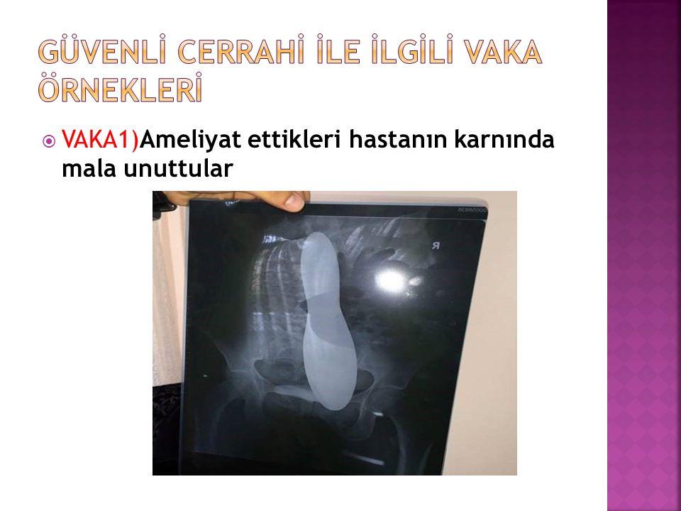  VAKA1)Ameliyat ettikleri hastanın karnında mala unuttular