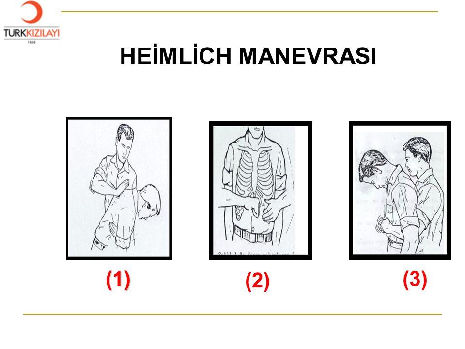 HEİMLİCH MANEVRASI (1) (2) (3)