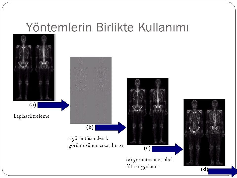 Yöntemlerin Birlikte Kullanımı Laplas filtreleme a görüntüsünden b görüntüsünün çıkarılması (a) görüntüsüne sobel filtre uygulanır (a) (b) (c) (d)