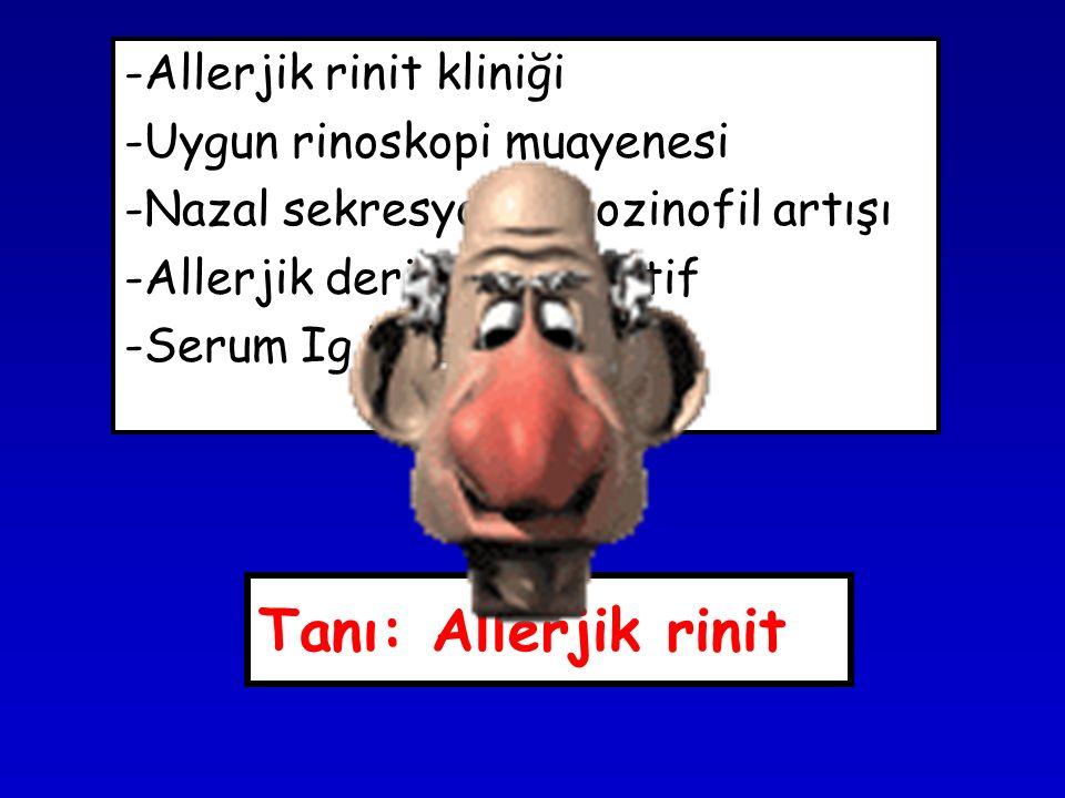 Tanı: Allerjik rinit -Allerjik rinit kliniği -Uygun rinoskopi muayenesi -Nazal sekresyonda eozinofil artışı -Allerjik deri testi pozitif -Serum Ig E y
