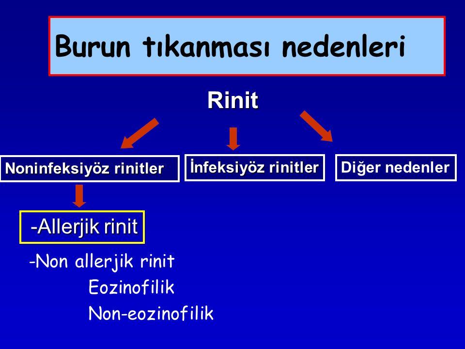 Burun tıkanması nedenleri -Non allerjik rinit Eozinofilik Non-eozinofilik Rinit Noninfeksiyöz rinitler İnfeksiyöz rinitler Diğer nedenler -Allerjik ri