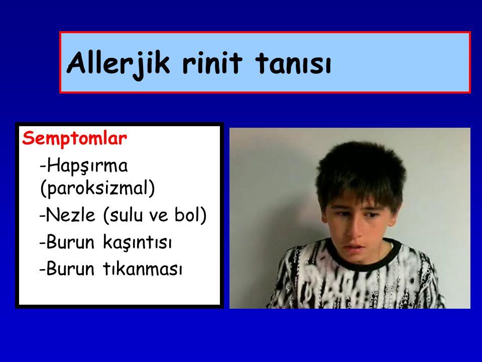 Tanı: Allerjik rinit -Allerjik rinit kliniği -Uygun rinoskopi muayenesi -Nazal sekresyonda eozinofil artışı -Allerjik deri testi pozitif -Serum Ig E yüksekliği