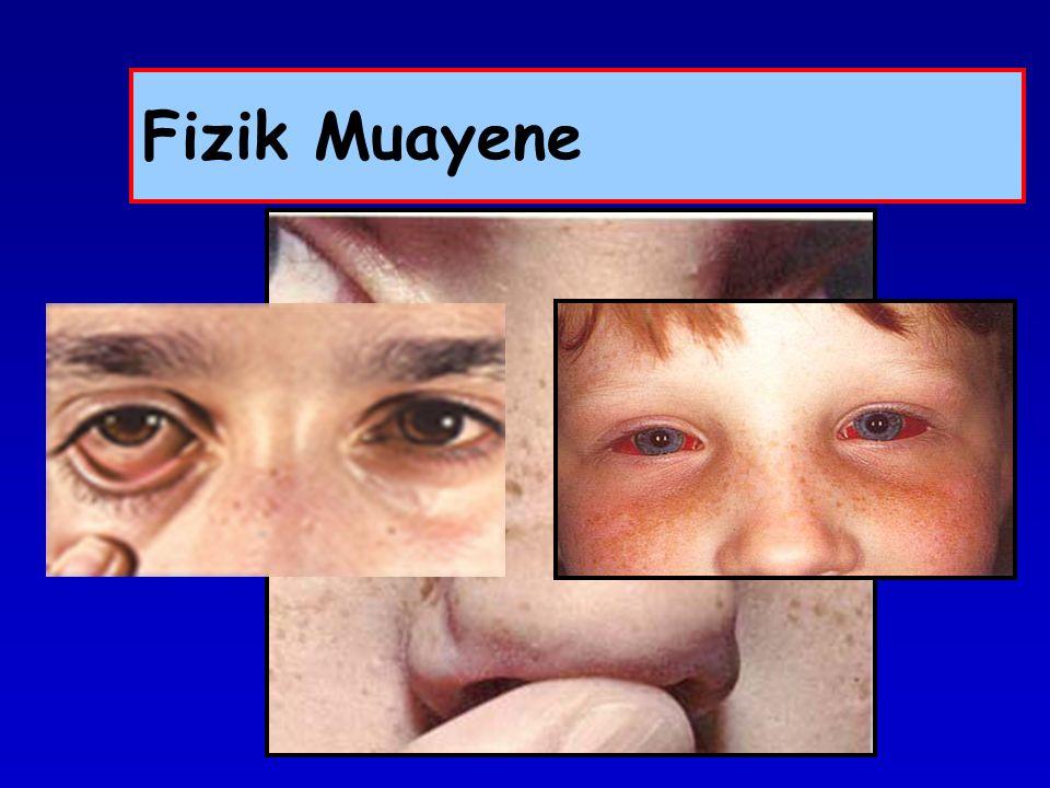 Ev dışı allerjenler Pencere açılması Ventilasyon sistemi Yüz maskesi Gözlük