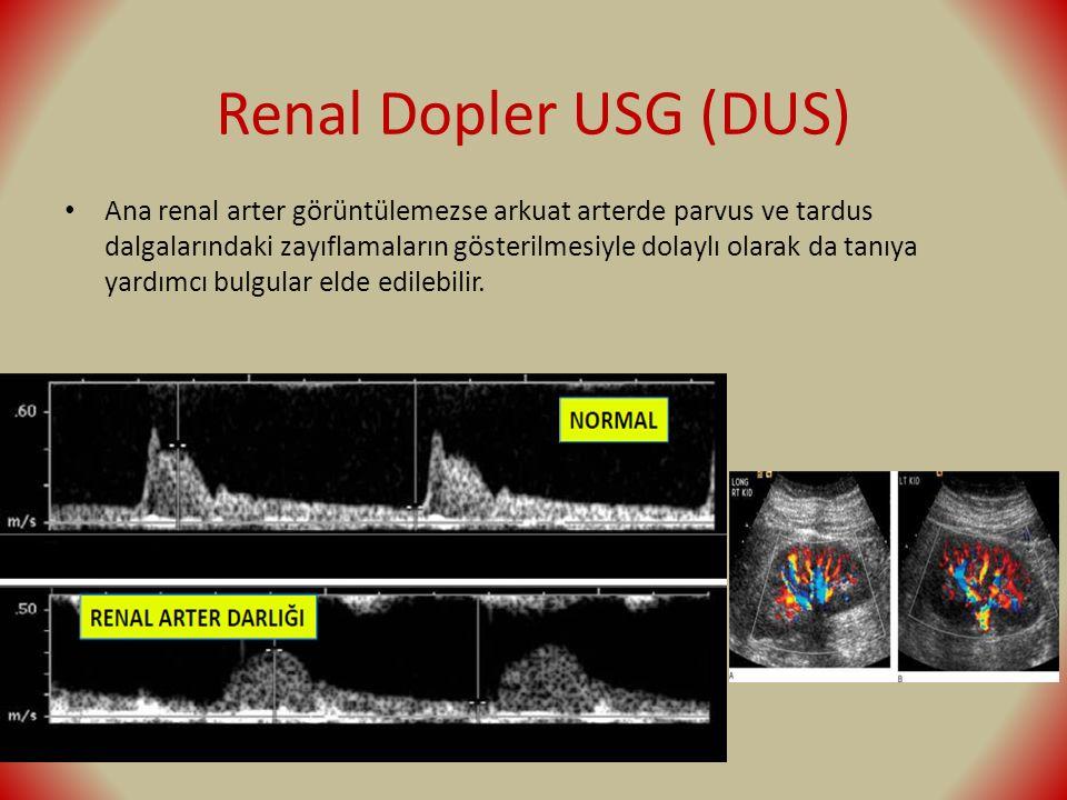 Renal Dopler USG (DUS) Ana renal arter görüntülemezse arkuat arterde parvus ve tardus dalgalarındaki zayıflamaların gösterilmesiyle dolaylı olarak da tanıya yardımcı bulgular elde edilebilir.