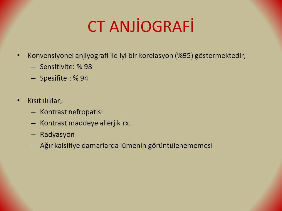 CT ANJİOGRAFİ Konvensiyonel anjiyografi ile iyi bir korelasyon (%95) göstermektedir; – Sensitivite: % 98 – Spesifite : % 94 Kısıtlılıklar; – Kontrast nefropatisi – Kontrast maddeye allerjik rx.