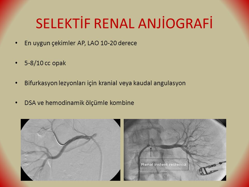 SELEKTİF RENAL ANJİOGRAFİ En uygun çekimler AP, LAO 10-20 derece 5-8/10 cc opak Bifurkasyon lezyonları için kranial veya kaudal angulasyon DSA ve hemo