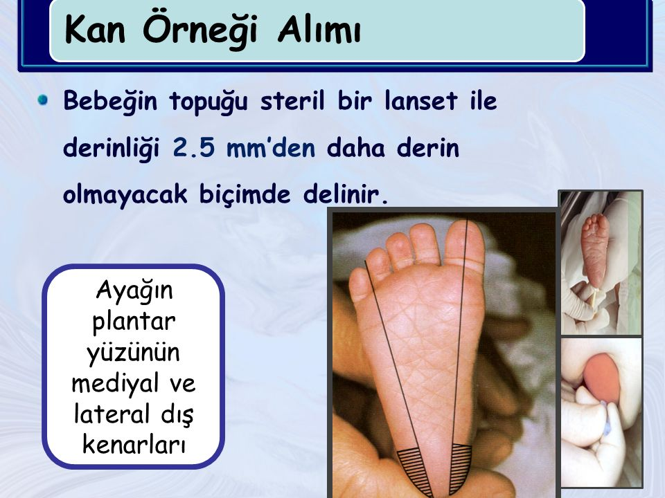 Kan Örneği Alımı Bebeğin topuğu steril bir lanset ile derinliği 2.5 mm'den daha derin olmayacak biçimde delinir.