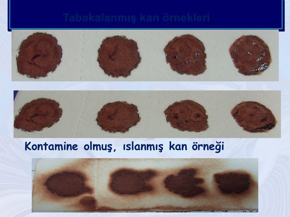 Tabakalanmış kan örnekleri Kontamine olmuş, ıslanmış kan örneği