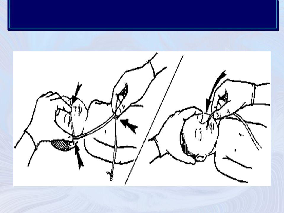 Sonda oral yol ile uygulanacaksa ağızdan başlayarak kulak memesi (ya da kulak memesinden ağıza) sternum alt ucu ve umbilikal arasındaki orta noktaya kadar ölçülür.