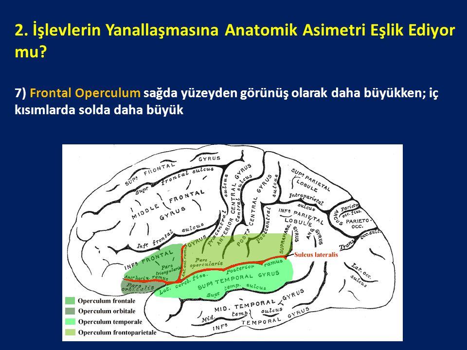 2. İşlevlerin Yanallaşmasına Anatomik Asimetri Eşlik Ediyor mu? 7) Frontal Operculum sağda yüzeyden görünüş olarak daha büyükken; iç kısımlarda solda