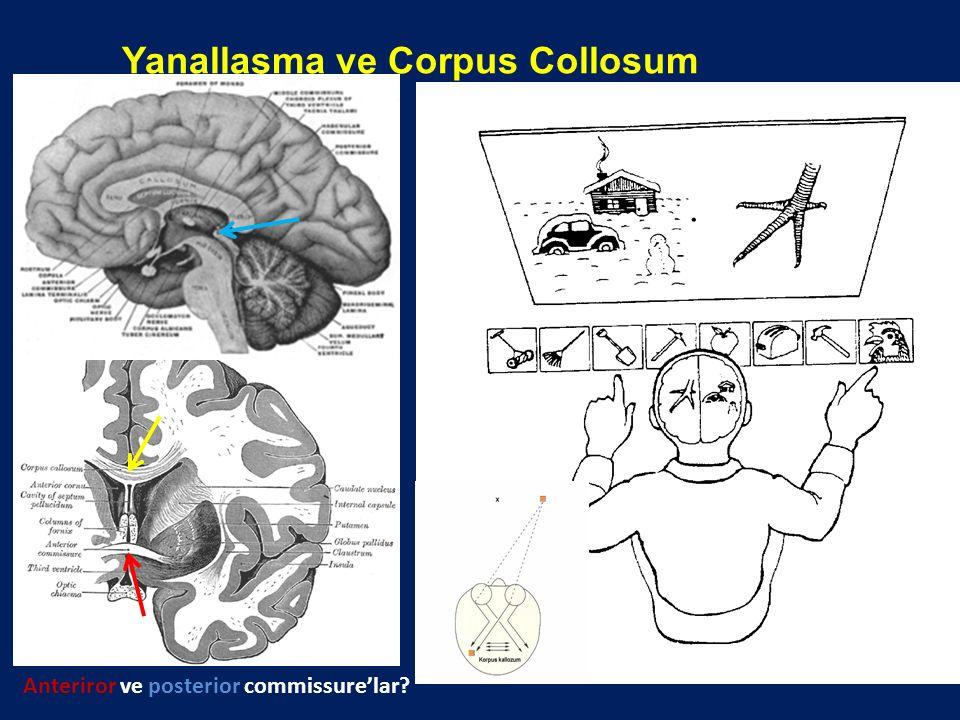 Yanallaşma ve Corpus Collosum Anteriror ve posterior commissure'lar?