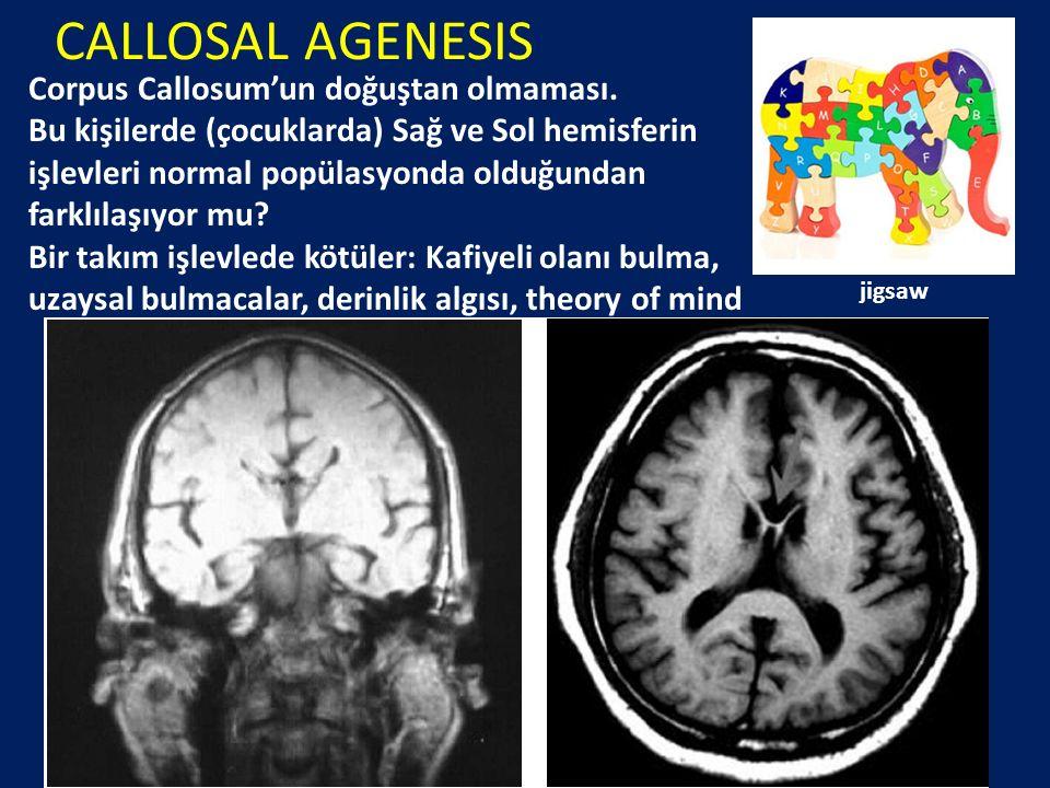 CALLOSAL AGENESIS Corpus Callosum'un doğuştan olmaması. Bu kişilerde (çocuklarda) Sağ ve Sol hemisferin işlevleri normal popülasyonda olduğundan farkl