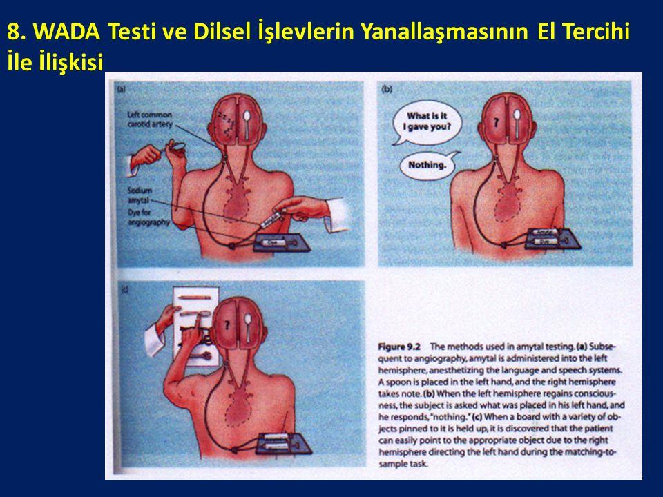 8. WADA Testi ve Dilsel İşlevlerin Yanallaşmasının El Tercihi İle İlişkisi