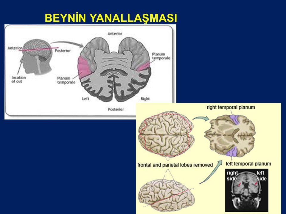 11.2.Beyin İşlevleri Hangi Temelde Yanallaşmaktadır.