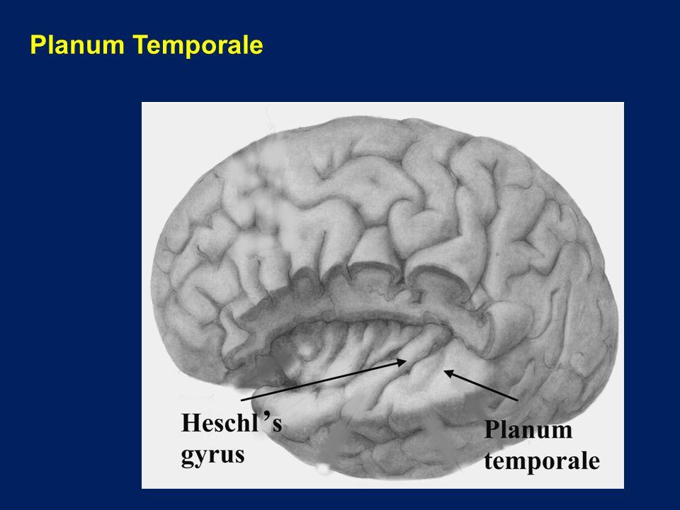 Testing Split-Brain Patients