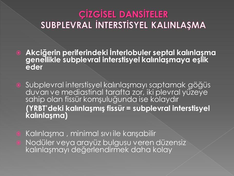  Akciğerin periferindeki İnterlobuler septal kalınlaşma genellikle subplevral interstisyel kalınlaşmaya eşlik eder  Subplevral interstisyel kalınlaş