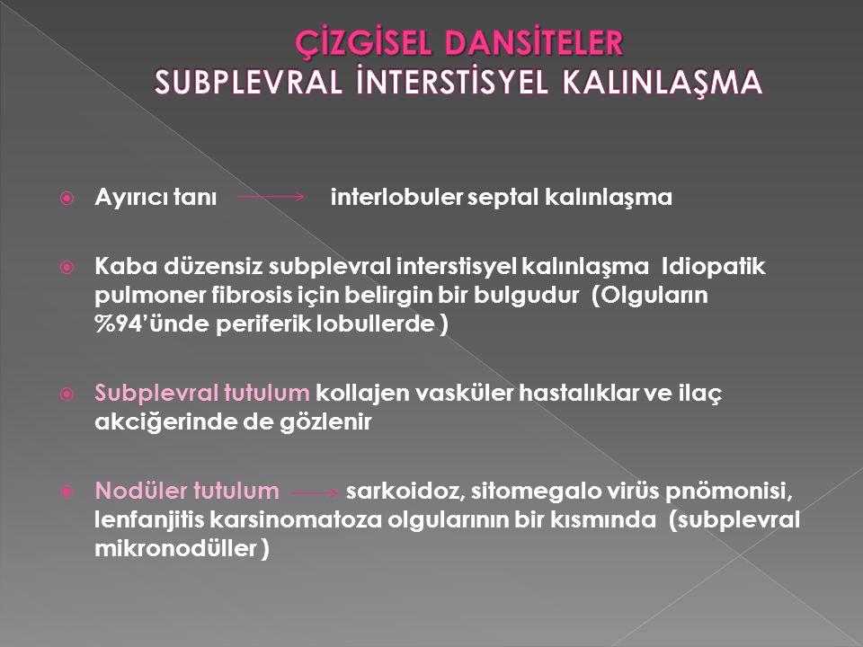  Ayırıcı tanı interlobuler septal kalınlaşma  Kaba düzensiz subplevral interstisyel kalınlaşma Idiopatik pulmoner fibrosis için belirgin bir bulgudu