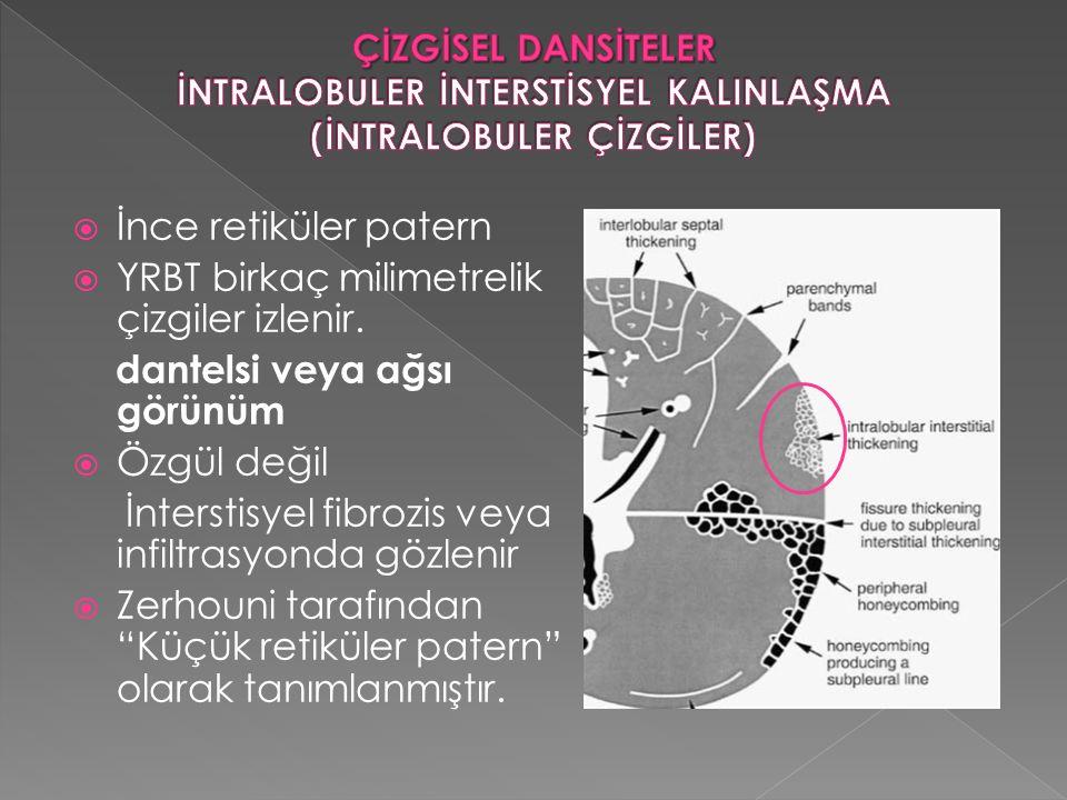  İnce retiküler patern  YRBT birkaç milimetrelik çizgiler izlenir. dantelsi veya ağsı görünüm  Özgül değil İnterstisyel fibrozis veya infiltrasyond
