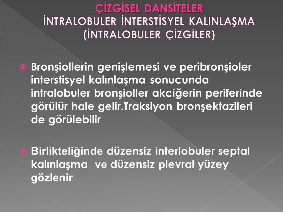  Bronşiollerin genişlemesi ve peribronşioler interstisyel kalınlaşma sonucunda intralobuler bronşioller akciğerin periferinde görülür hale gelir.Trak