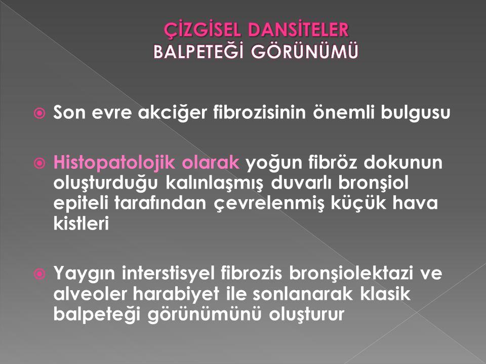  Son evre akciğer fibrozisinin önemli bulgusu  Histopatolojik olarak yoğun fibröz dokunun oluşturduğu kalınlaşmış duvarlı bronşiol epiteli tarafında